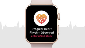 Apple Heart Study Findings